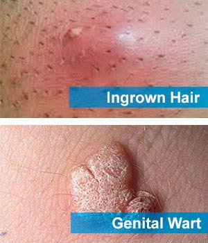 Ingrown Hair Or Std Pimple Wart Staph Spider Bite