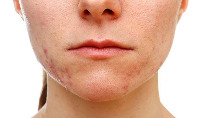 can-oil cause-acne bad foracne