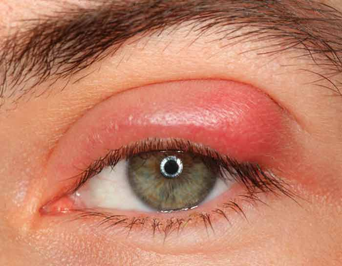 Eyelid swelling ingrown eyelash symptom