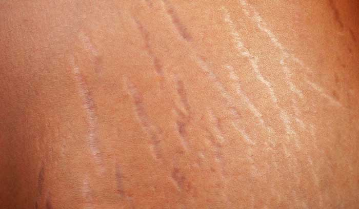 Grape seed oil can help cure stretch marks