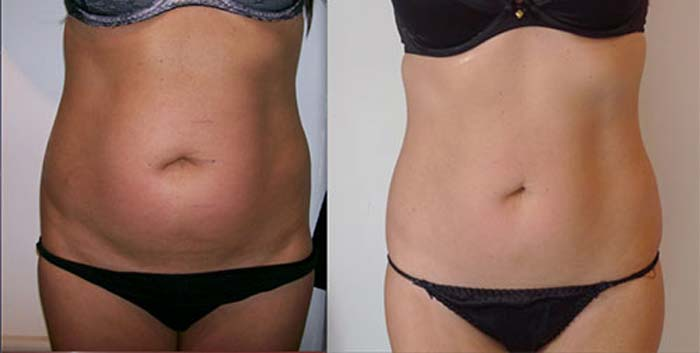 Black cumin seed oil before and after belly fat loss results