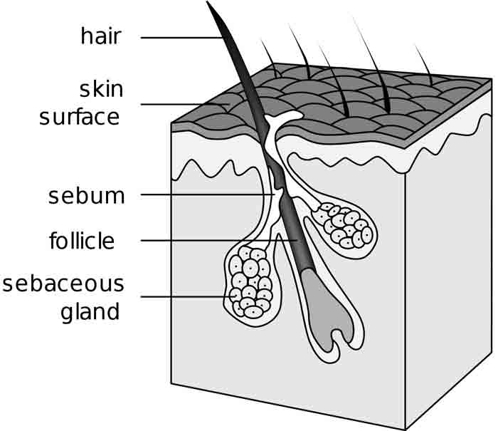 forming of pimple and Sebaceous glands