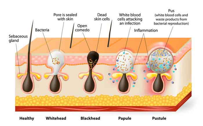 Types of pimples and symptoms