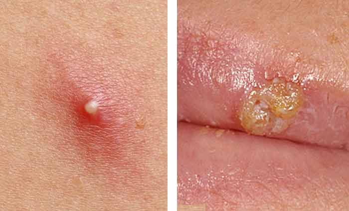 Difference Between Genital Herpes And Ingrown Hair