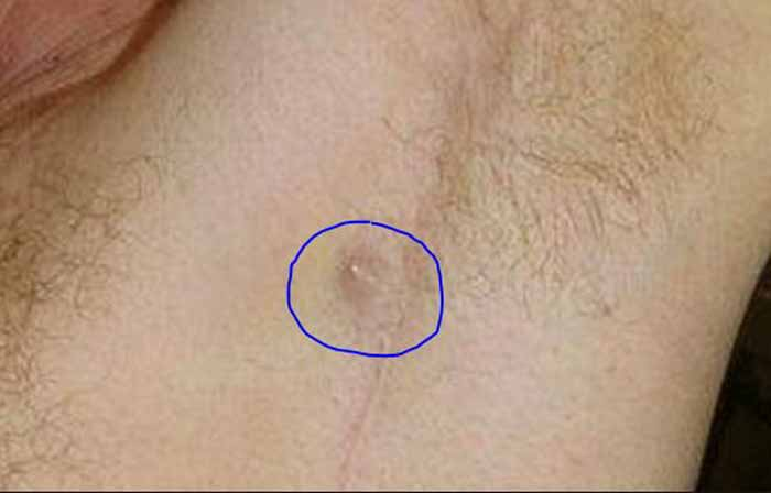 Ingrown Armpit Hair under arm ho to get rid, symptoms-causes