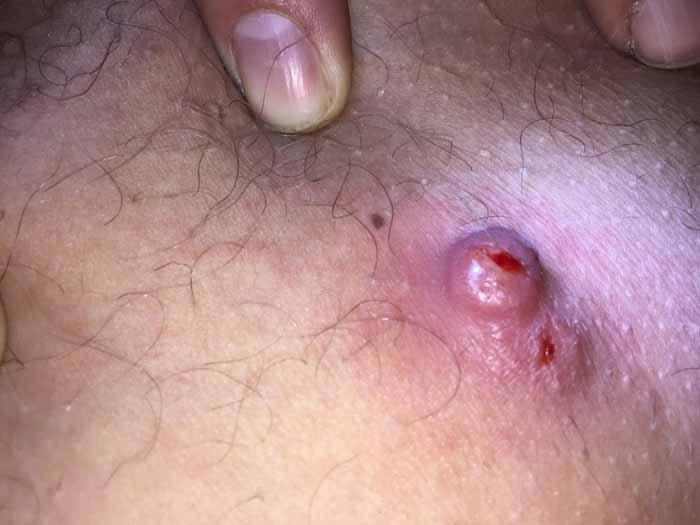 pubic ingrown hair cyst wwwpixsharkcom images