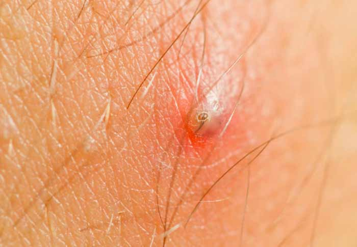 Difference between ingrown hair and herpes