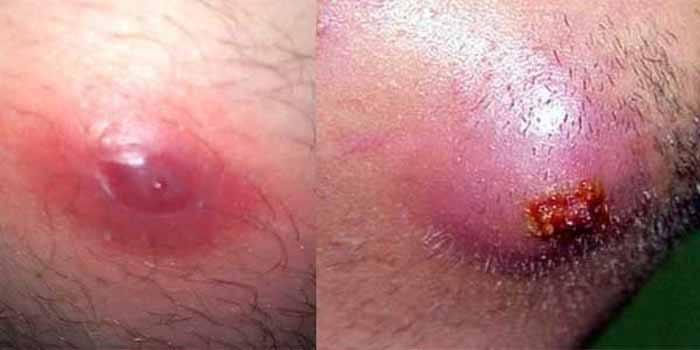 Ingrown Hair Cyst Removal Won T Go Away Under Skin