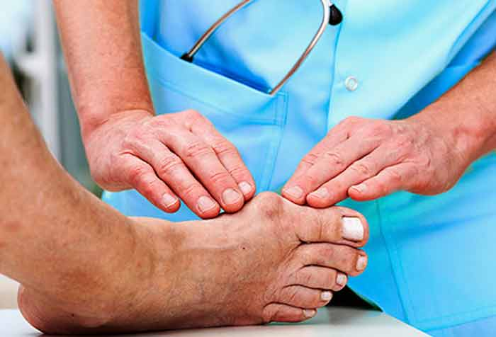 how get rid shrink reverse bunions without surgery naturally