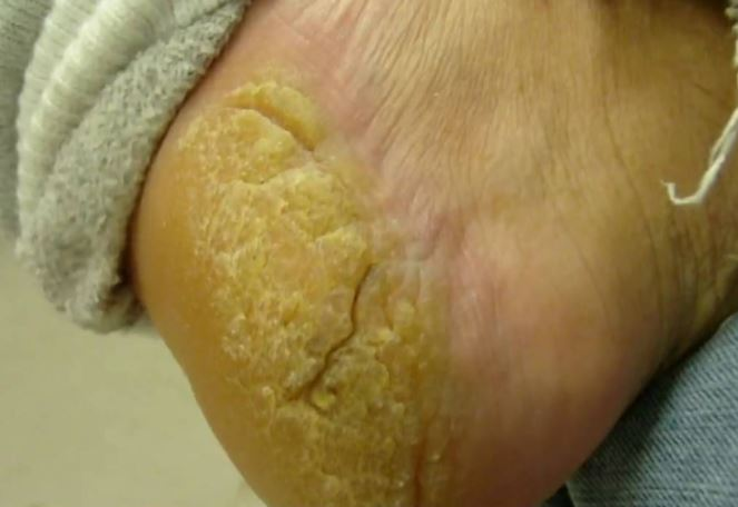 Calluses can cause yellow feet