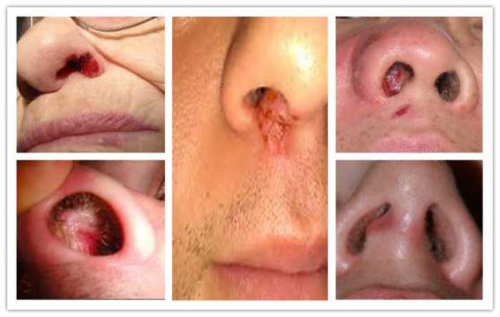 Sore Inside Nose Won T Heal Pictures Causes And How To