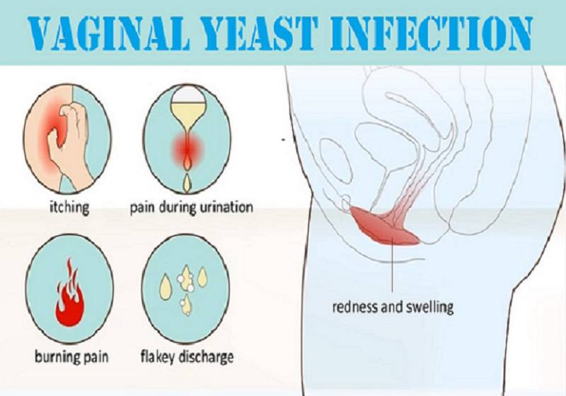 Yeast Infection female organs